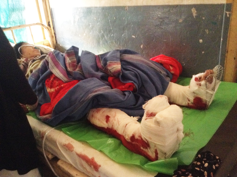 nine-month old baby boy victim of wokha bomb blast