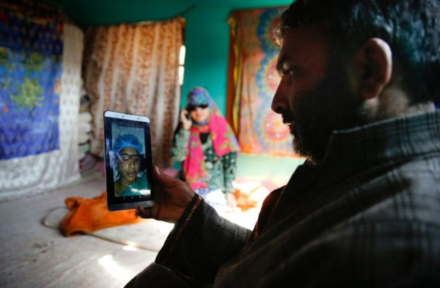 Mushtaq Ahmad shows a picture of his daughter while she was undergoing treatment for pellet injuries
