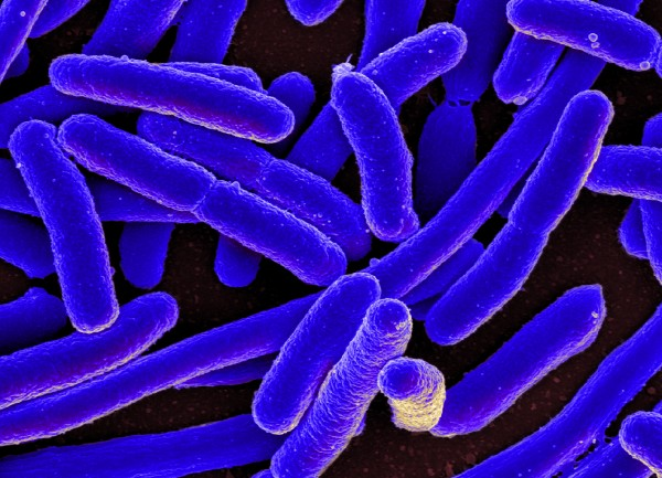 Researchers worked with E. coli bacteria (NIAID/Flickr)