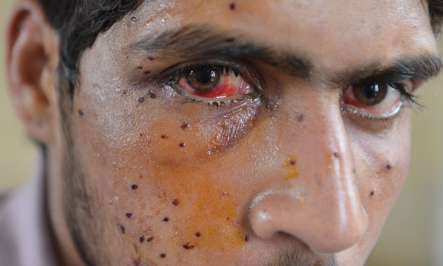 A Kashmiri protester who was shot by Indian security forces in Srinagar, in July 2016. Photograph: Tauseef Mustafa/AFP/Getty Images
