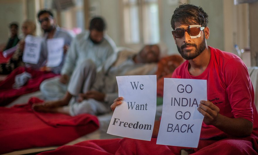 Victims of police shooting who have been blinded in one or both eyes in hospital in Srinagar. Photograph: Yawar Nazir/Getty Images